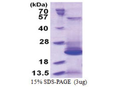 BLOC-1 subunit 2 (1-142, His-tag)