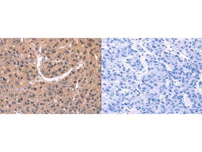Rabbit Polyclonal Anti-EXTL1 Antibody
