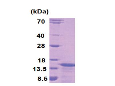 KiSS-1 (1-120)