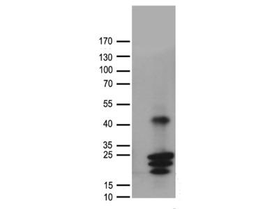 Rabbit polyclonal anti-CGB7 Antibody