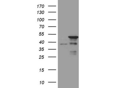 Carrier-free (BSA/glycerol-free) TAF1A mouse monoclonal antibody,clone OTI7A11