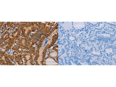 Rabbit Polyclonal Anti-MBNL3 Antibody