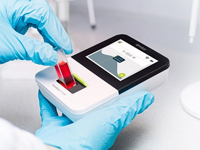 fluidlab R-300 Handheld Cell Counter & Spectrometer from anvajo GmbH |  Biocompare.com