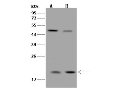 COMMD1/MURR1 Antibody, Rabbit PAb, Antigen Affinity Purified