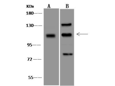 TBC1D2 Antibody, Rabbit PAb, Antigen Affinity Purified