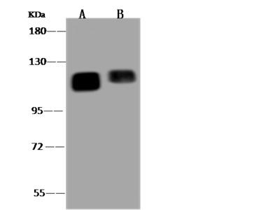 PTPN12 Antibody, Rabbit PAb, Antigen Affinity Purified