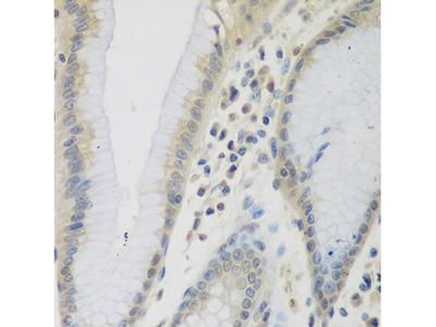 Eotaxin 3 Antibody