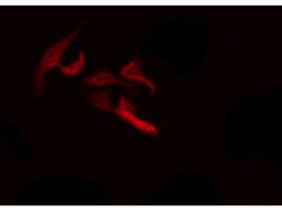 PTHLH Antibody