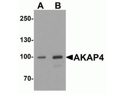 AKAP4 Antibody