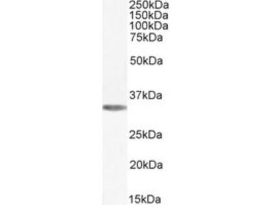 Adenosine A1R Antibody