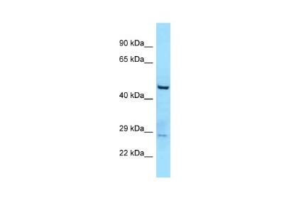 TTLL3 Antibody