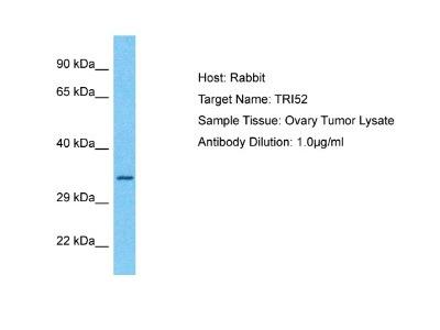 TRIM52 Antibody