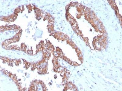 TMEPAI Antibody (PMEPA1 /2696)
