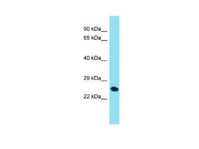 CHMP4C Antibody
