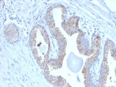 TMEPAI Antibody (PMEPA1 /2697)