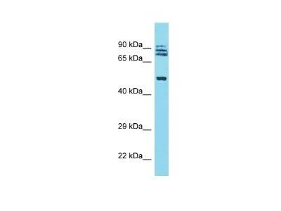 TRIM64A Antibody