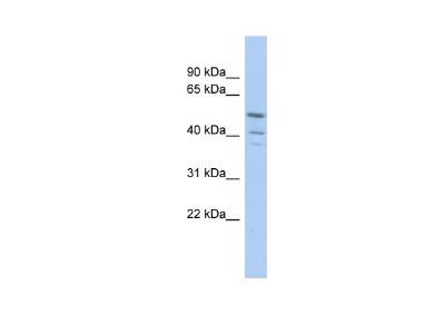 TRIM50 Antibody