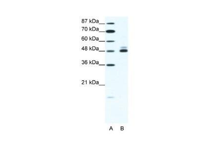 Nicotinic Acetylcholine Receptor beta 2 Antibody
