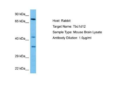 TBC1D12 Antibody