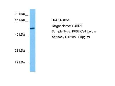beta I + II Tubulin Antibody