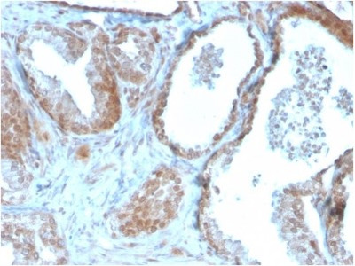 TIGIT Antibody (TIGIT/3106)