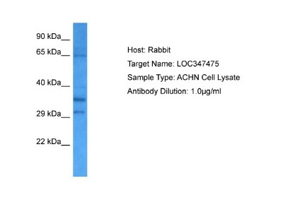 CCDC160 Antibody