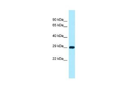 CSAD Antibody