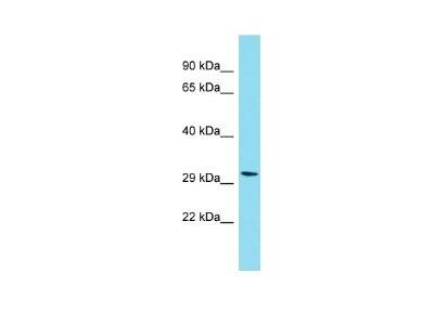 PIH1D2 Antibody