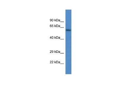 Heparanase /HPSE Antibody