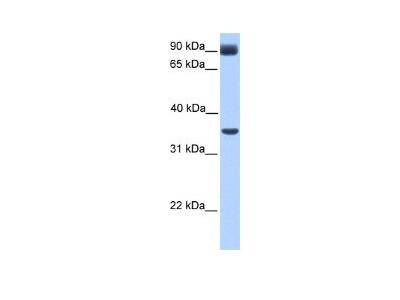 CBF1-interacting corepressor Antibody