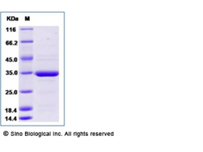 Human ANXA5 / Annexin Ⅴ / Annexin A5 Protein, Biotinylated