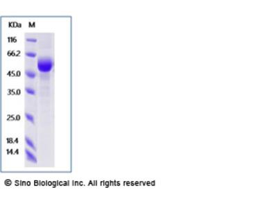 Human SIGLEC15 Protein (ECD, Fc Tag)