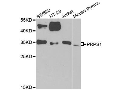 Anti-PLC Beta 2 PLCB2 Antibody