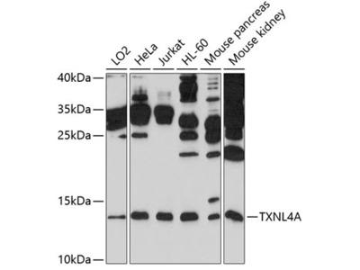 Anti-Thioredoxin-like protein 4A TXNL4A Antibody