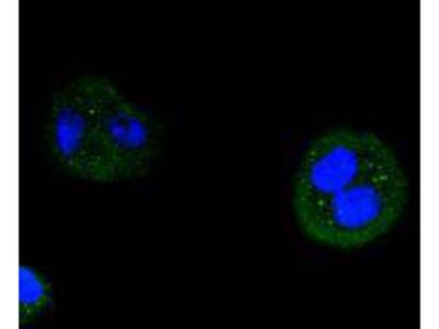 Anti-Cyclin D3 CCND3 Antibody