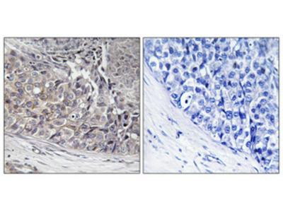 Anti-ADCK4 COQ8B Antibody