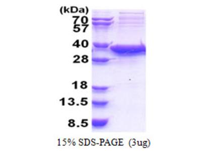 Human Sirtuin 5/SIRT5 Recombinant Protein