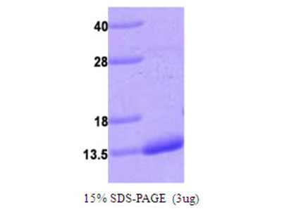 Human S100A4 Recombinant Protein