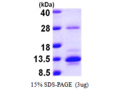 Human S100A10 Recombinant Protein