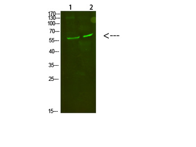 Anti-C8 alpha Antibody