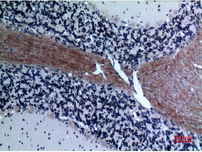 Anti-Eotaxin-3 CCL26 Antibody