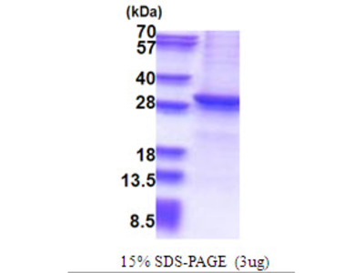 Human Sirtuin 1/SIRT1 Recombinant Protein