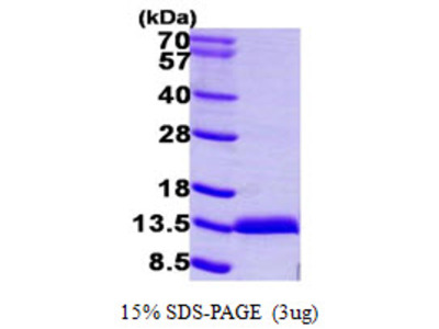Human S100A11 Recombinant Protein