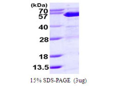Human SUFU Recombinant Protein