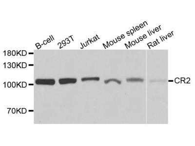 Anti-Complement receptor type 2 CR2 Antibody