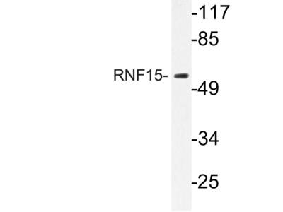 Anti-RNF15 (E193) TRIM38 Antibody