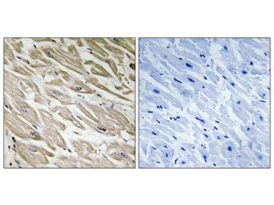 Anti-Phospho-IPP-2 (S120/S121) PPP1R2 Antibody