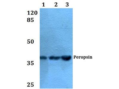Anti-Peropsin (D237) RRH Antibody