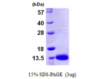 Human S100A13 Recombinant Protein