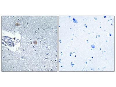 Anti-CSGlcA-T CHPF2 Antibody